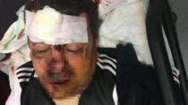 Otobüsten Düşen Beşiktaş Taraftarı Hayati Tehlikeyi Atlattı