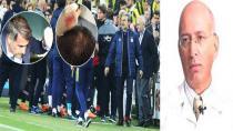 Prof. Dr. Aydın ''Saçlı Deride Kan Vardı''